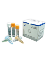 Mitochondrion DNA site 11778 Mutation Real Time PCR Kit